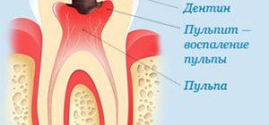 Что такое пульпит зуба и как его лечат