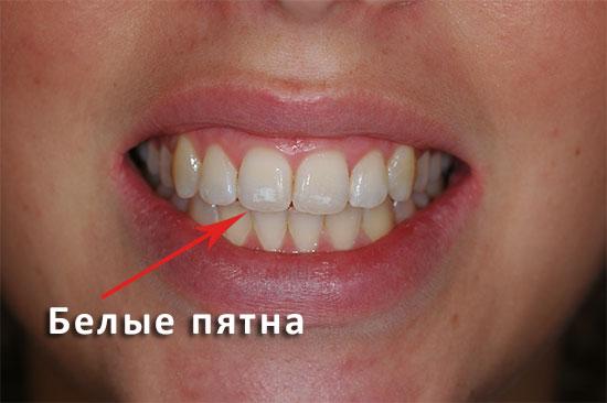 Белые пятна на зубах у детей