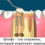 Что такое зубной штифт и как его устанавливают