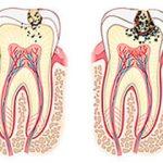 Стадии кариеса зубов и как лечат кариес на разных стадиях