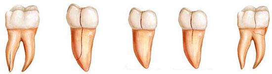 Виды трещин в зубах
