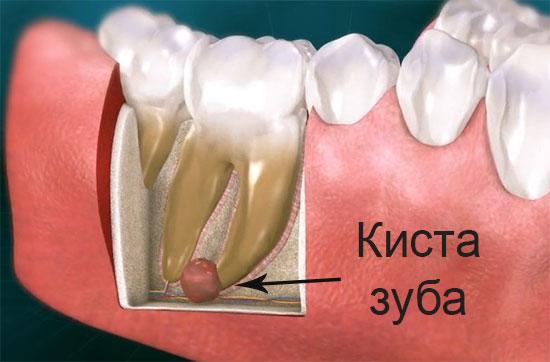 Лечение кисты зуба в домашних условиях