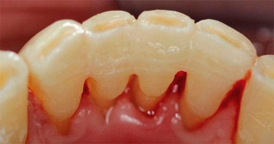 Особенности шинирования зубов