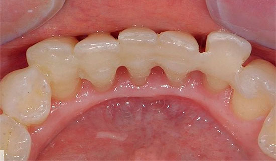 Шинирование зубов при пародонтите.