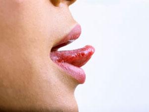 Почему болит язык