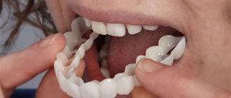 Съемные зубные протезы без нёба