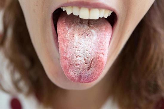 Грибок на зубах у взрослых