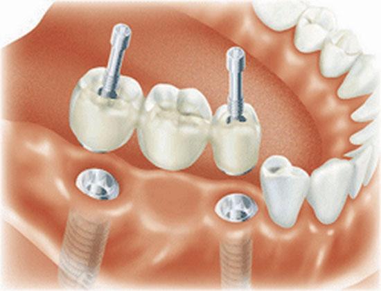 Особенности коронок для установки на имплантат