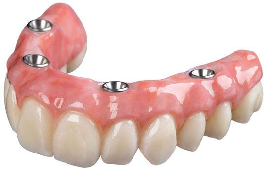 Современные зубные протезы нового поколения