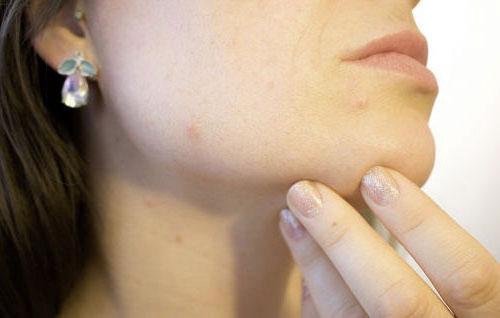 Воспаление желез под языком: причины и лечение сиалоаденита