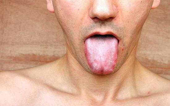 Симптомы грибка во рту