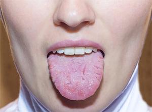 Трещины на языке: причины и лечение
