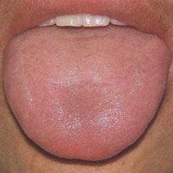 Почему опухает язык и что делать