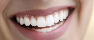 Как сделать зубы белыми в домашних условиях