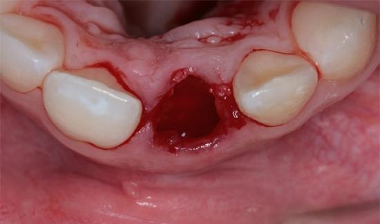 Дырка после удаления зуба – сколько зарастает и что делать