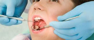 Лечение кариеса зубов у детей