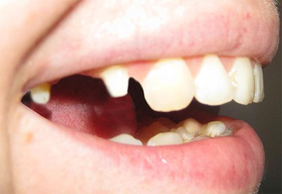 Обточка зубов: когда делают и можно ли обойтись без обточки