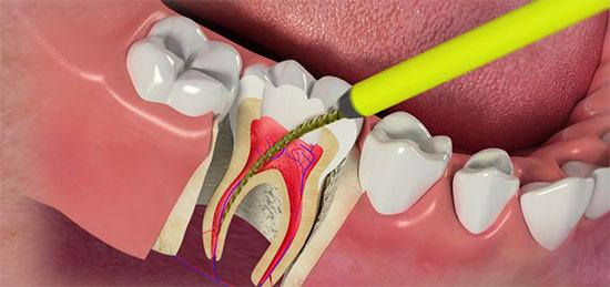 Как происходит пломбирование зуба кальцием