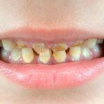 Почему у ребенка желтые зубы