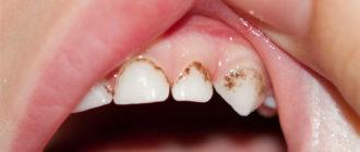 Налет на зубах у ребенка - причины и что делать
