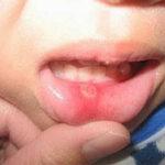 Чем лечат стоматит у детей
