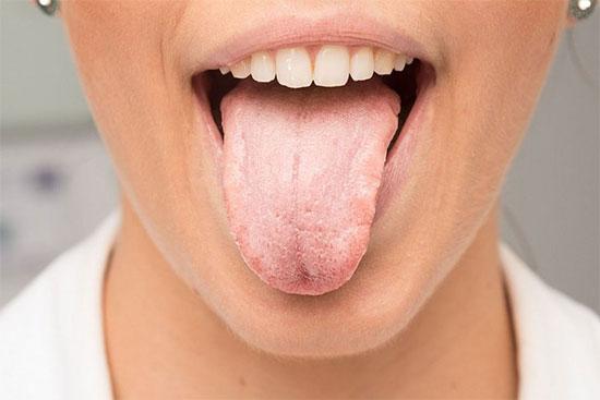 Глоссит языка: симптомы и лечение