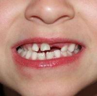 Сроки прорезывания постоянных зубов у детей