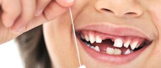 Почему выпадают зубы у детей