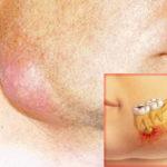 Чем опасен флюс зуба