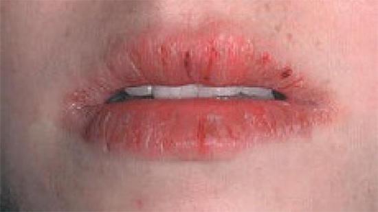 Причины и лечение хейлита на губах