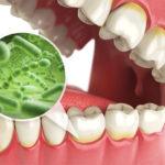 Инфекции ротовой полости: симптомы и лечение