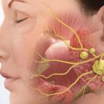 Слюннокаменная болезнь: причины, симптомы, лечение