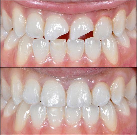 Технология проведения композитной реставрации зубов