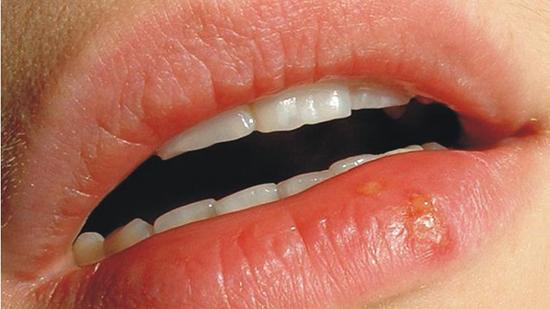 Как избавиться от стоматита на губе