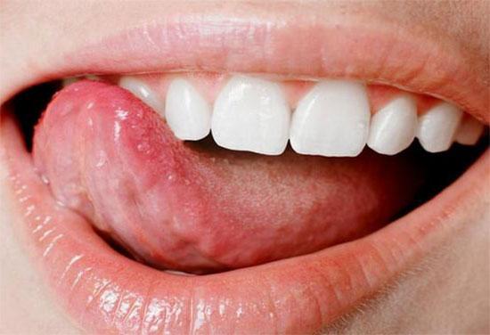 На языке болит прыщик — причины и что делать
