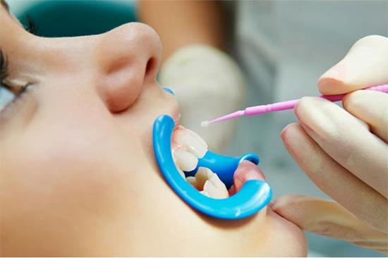 Восстановление зубной эмали реминерализацией