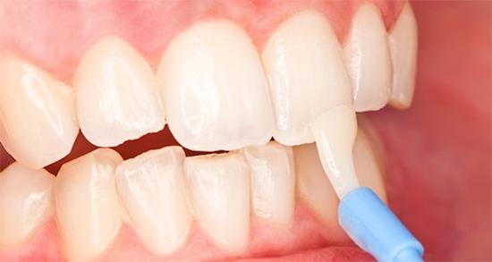 Восстановление зубной эмали - лучшие способы