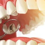 Кариес зубов: понятие, причины, лечение, профилактика