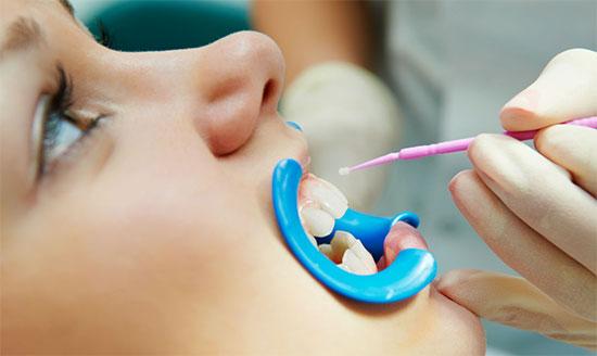 Проведение реминерализации зубной эмали в клинике