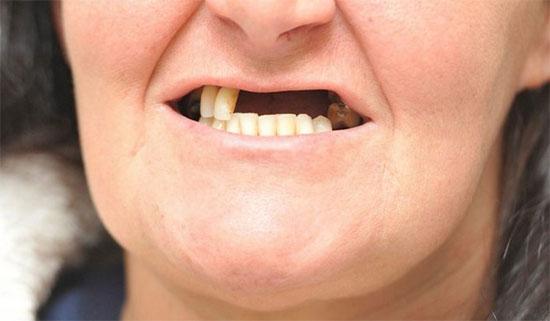 Почему выпадают зубы у взрослых