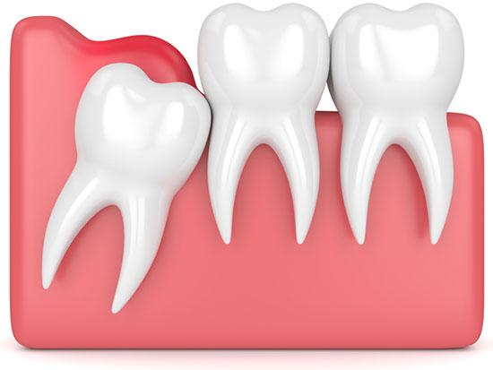 Перикоронарит зуба: симптомы и лечение