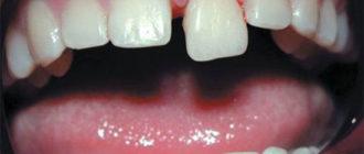 Вывих зуба – симптомы и лечение