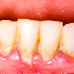 Почему поднялась десна над зубом и что делать