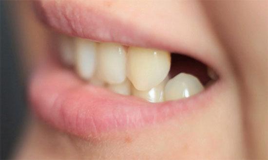 Уход за деснами после удаления зуба