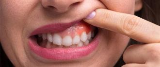 Воспалилась десна около зуба – что делать и чем лечить