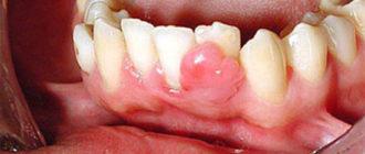 Эпулис на десне: причины и лечение
