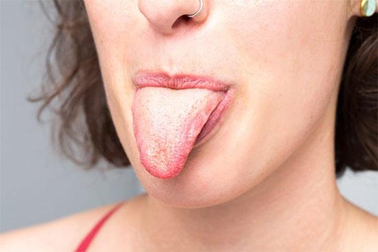Налет на языке: виды, причины, лечение
