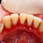 Отходит десна от зуба: причины и лечение