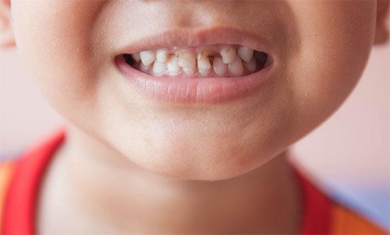 Детский кариес. Как вылечить кариес молочных зубов?
