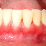Катаральный гингивит: причины, диагностика, лечение